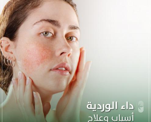 داء الوردية أسباب وعلاج