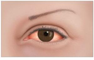 وردية العين