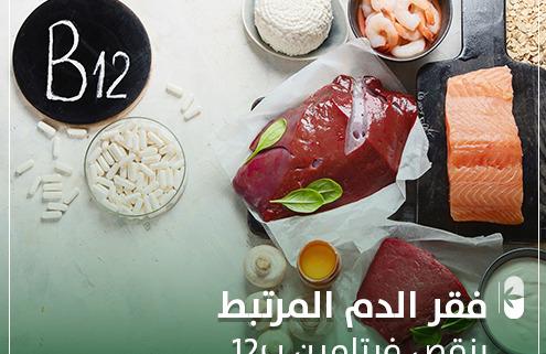 فقر الدم المرتبط بنقص فيتامين ب 12